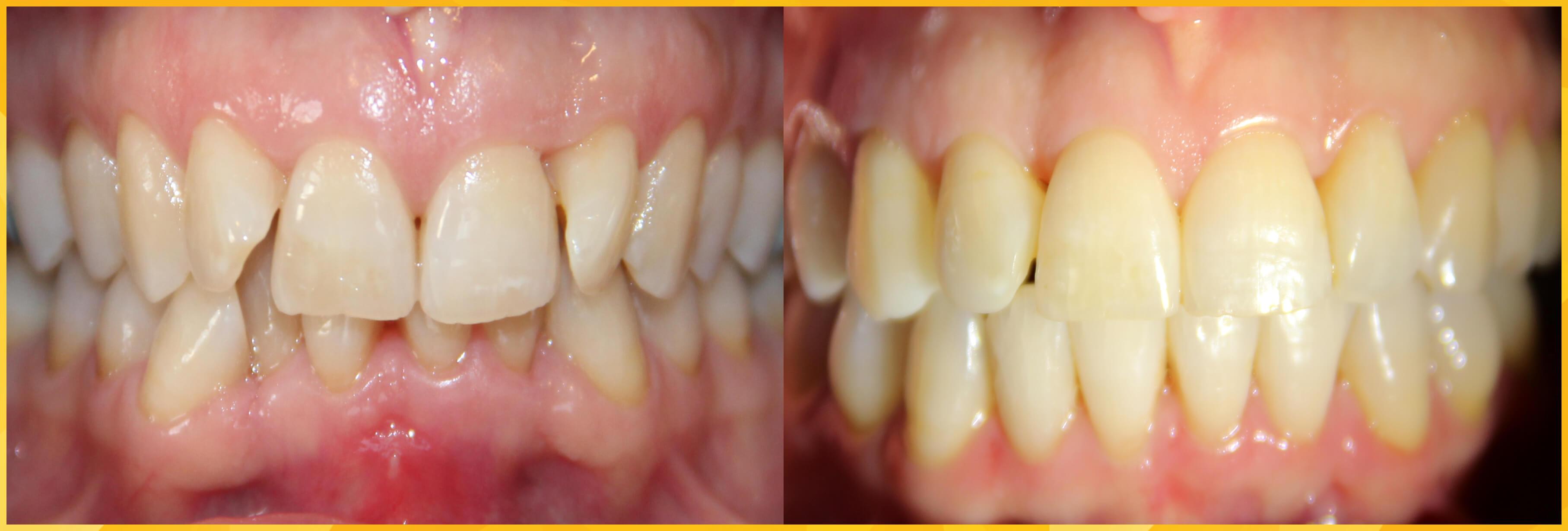 functional orthodontics